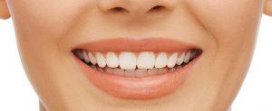 Tanden bleken