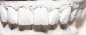 Restauratieve tandheelkunde